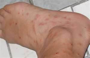 How Do Bed Bugs Look pictures